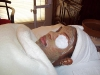 Meena Doctor Client Facial Before