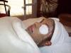 Meena Doctor Client Facial Before